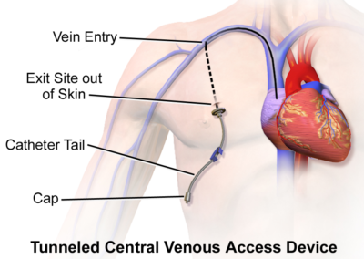 Central Venous Access Device (Tunneled)